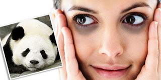 eyes-pandas,www.healthnote25.com