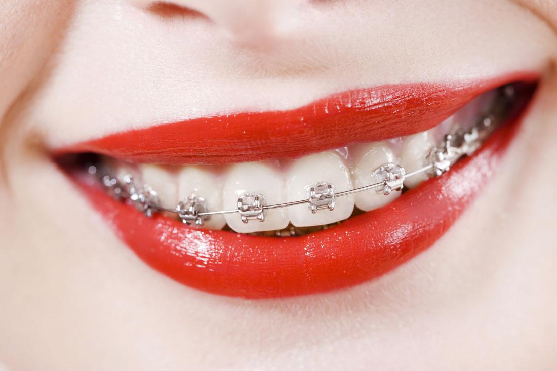 krzywe zęby randki randki sendung vox