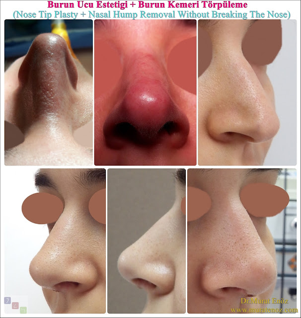 Nose Tip Lifting Operation Time - Nose Tip Plasty Operation Time - Nasal Hump Reduction Operation Time - Septoplasty operation time - Nose Tip Plasty Operation in Istanbul - Nose Tip Plasty Turkey - Nose Tip Lifting in Istanbul - Tip plasty in İstanbul - Nose Tip Reshaping in Istanbul - Nose Tip Surgery in Turkey - Open Technique Tip Plasty Operation in Istanbul - Nasal Hump Removal in Istanbul - Nasal Hump Removal in Turkey - Nasal Hump Rasping - Dorsal Hump Removal  Video - Nasal Hump Rhinoplasty - Nasal Hump Reduction  - Rhinoplasty in Istanbul - Rhinoplasty in Turkey