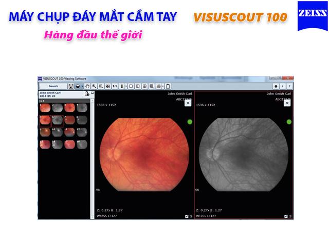 Phần mềm xem ảnh của Máy chụp đáy mắt cầm tay VISUSCOUT 100 Zeiss Đức