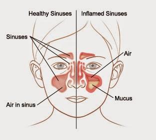 Sinusitis yaitu peradangan atau pembengkakan dari jaringan yg melapisi sinus Devinisi,Penyebab,Gejala dan Cara Pengobatan Sinusitis