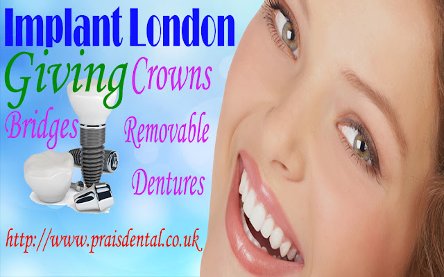 Implant London giving the support for crowns bridges and removable dentures