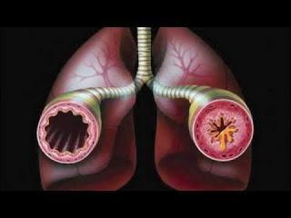Obat Penyakit Asma Secara Alami