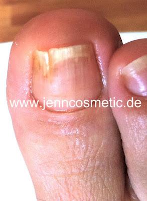 Brüchige-Zehennägel-Brüchige-Nägel-Jenn-Cosmetic
