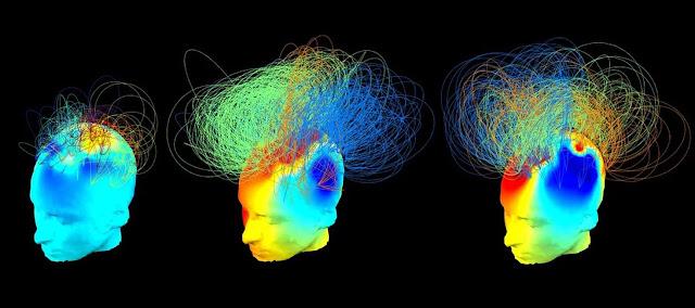 Χαρτογραφώντας τη συνείδηση - Πού κρύβεται η συνείδηση; | Braining.gr