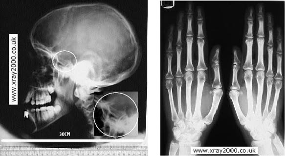 radiografie maini acromegalie