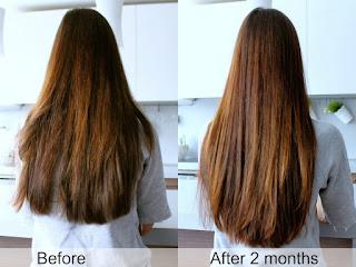 Pengen Rambut Tebal dan Sehat? Terapkan Tips Ini Untuk Menjauhkan Rambutmu Dari Kerontokan