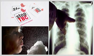 Cara Mengobati TBC ( Flek Paru-Paru ) Secara Alami
