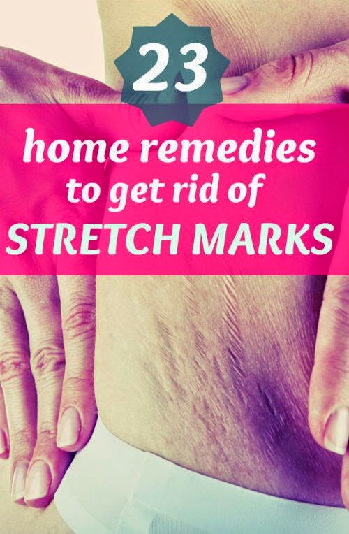 Effective Home Remedies to Get Rid of Stretch Marks