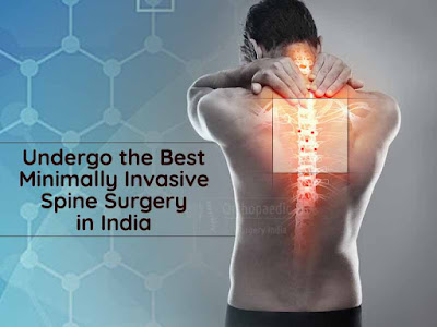 Undergo the Best Minimally Invasive Spine Surgery in India