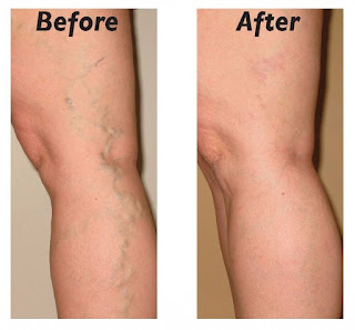 ways to cure varicose veins