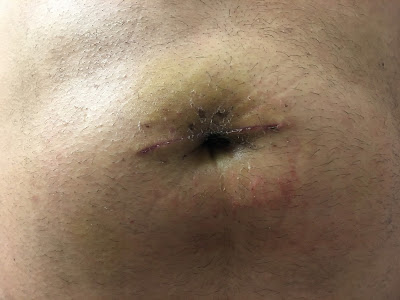 Two weeks after hernia repair at Shouldice  - front close-up