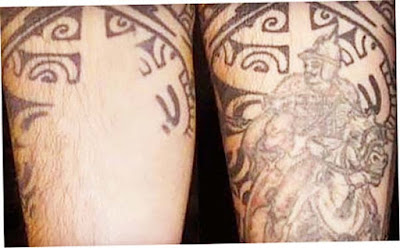 Tattoo Removal With Laser Picture Before and After New Photo for 2016