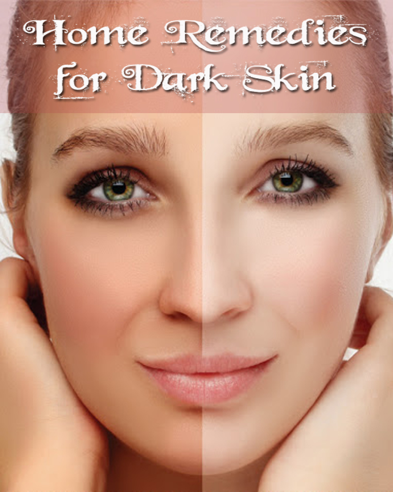 Home Remedies for Dark Skin