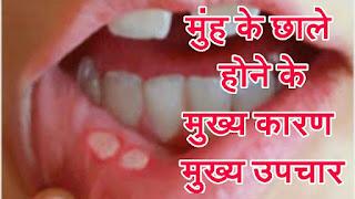 मुंह के छालो का उपचार