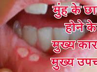 मुंह के छाले होने के मुख्य कारण व मुंह के छालो का आयुर्वेदिक व घरेलू उपचार