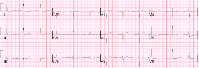 Dr  Smith's ECG Blog: Look at II, III, aVF in this case, and