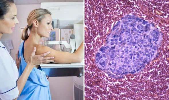 Scientists Destroyed Breast Cancer Tumors In 11 Days Without Chemotherapy