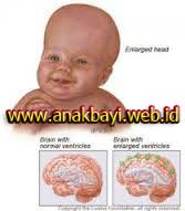 Cara Mengobati Hidrosefalu pada Anak Bayi Tanpa Operasi