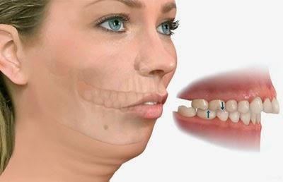 Resultado de imagen de mandibula desviada