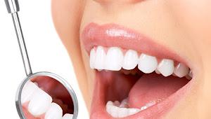 Hanya Perlu 1 Detik Dengan Cara Berikut Ini Gigi Anda Putih