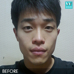 짱이뻐! - Steadily Becoming Sharp Face After Korean Face Contouring