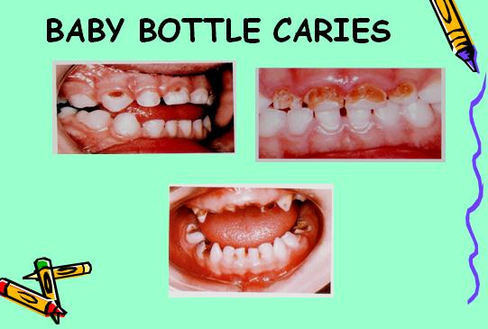Perawatan Gigi Dan Pengaruhnya Bagi Perkembangan Si Kecil