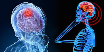 radiasi dari handphone bisa memicu aktifitas sel abnormal dalam otak yang jadi penyebab kanker otak