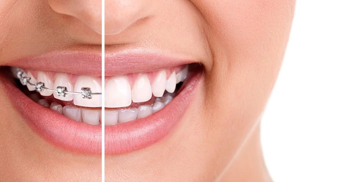 Ortodoncia paso a paso odontolog a al dia for W de porter ortodoncia