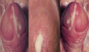 Bahaya penis keluar nanah - obat ampuh atasi gonore