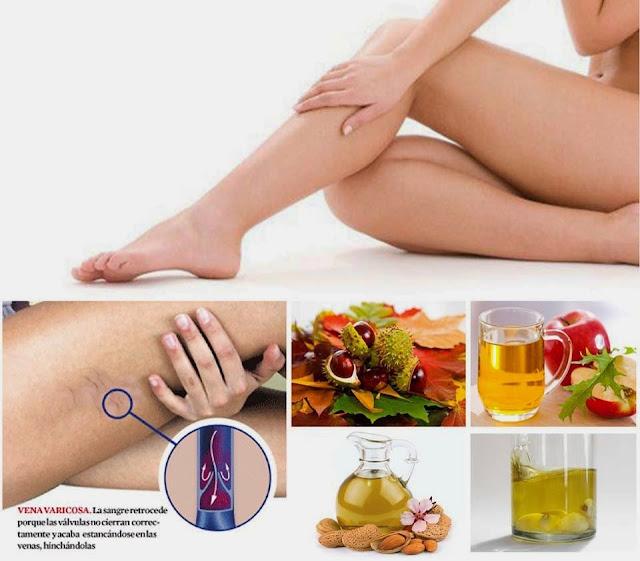 Resultado de imagen para varices en las piernas