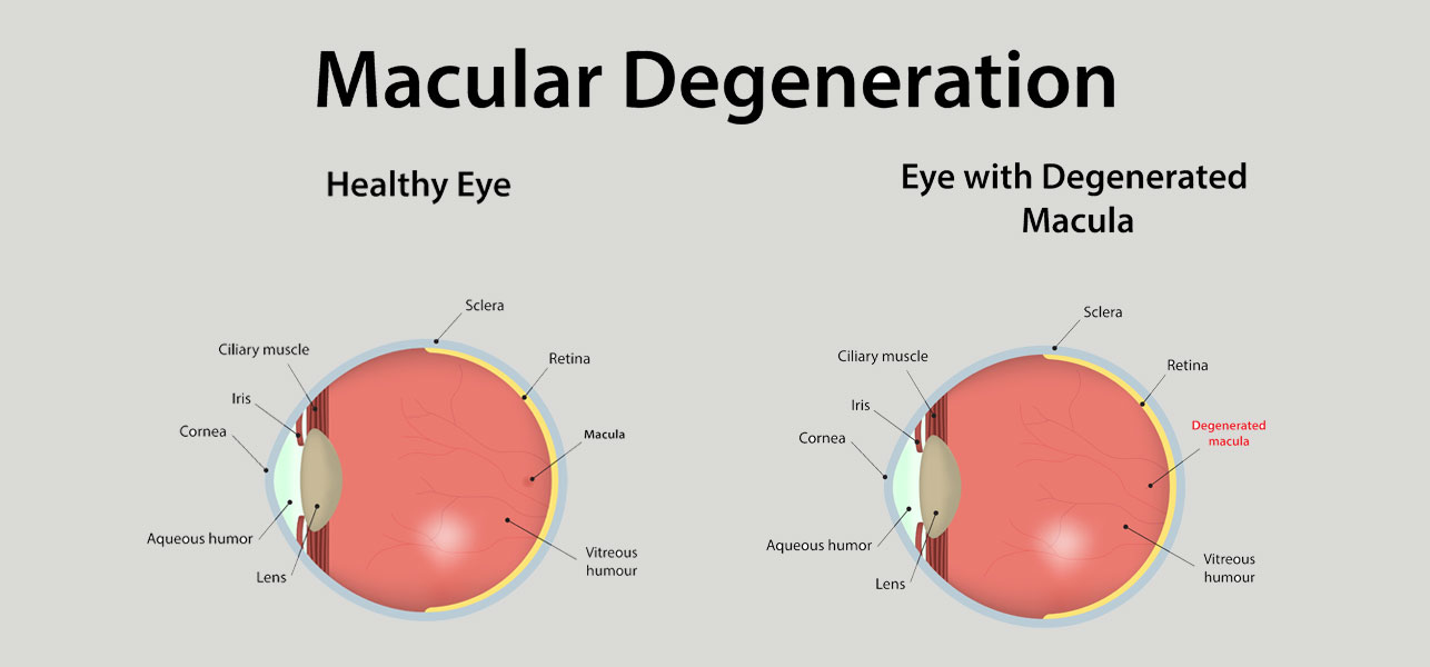 an introduction and overview of macular degeneration There are several treatments for macular degeneration, or what's more commonly referred to as age-related macular degeneration (amd)—a condition that gradually wipes out the central vision in general, these treatments can prevent and slow the worsening of vision by preventing damage to the retina.