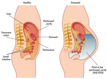 ascites - causes, symptoms and treatment | bang-rash, Human Body