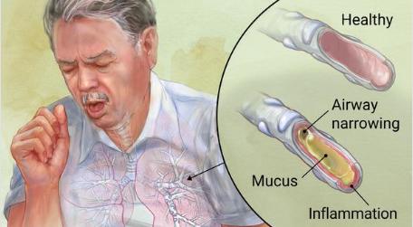 एलर्जी ब्रोंकाइटिस (श्वसनीशोथ) के लिए आयुर्वेदिक उपचार