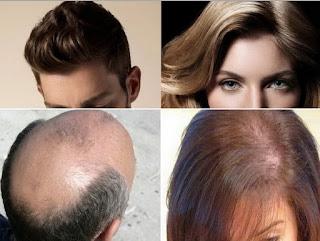 Cara Alami Agar Rambut Botak Cepat Tumbuh Panjang dan Lebat