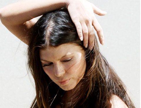 queda de cabelo hair loss