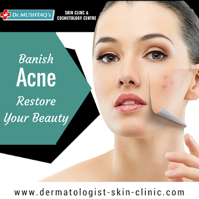 http://dermatologist-skin-clinic.com/face/acne-treatment/