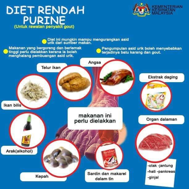 Gout, Penyakit Gout, Makanan Gout, Makanan yang perlu dielakkan pesakit gout, Pesakit gout tak boleh makan,