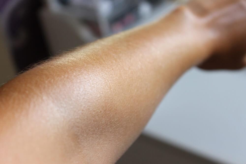 biovitalis zlatni maslac blog recenzija
