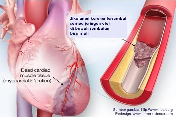 Memahami Penyakit Serangan Jantung Dengan Benar