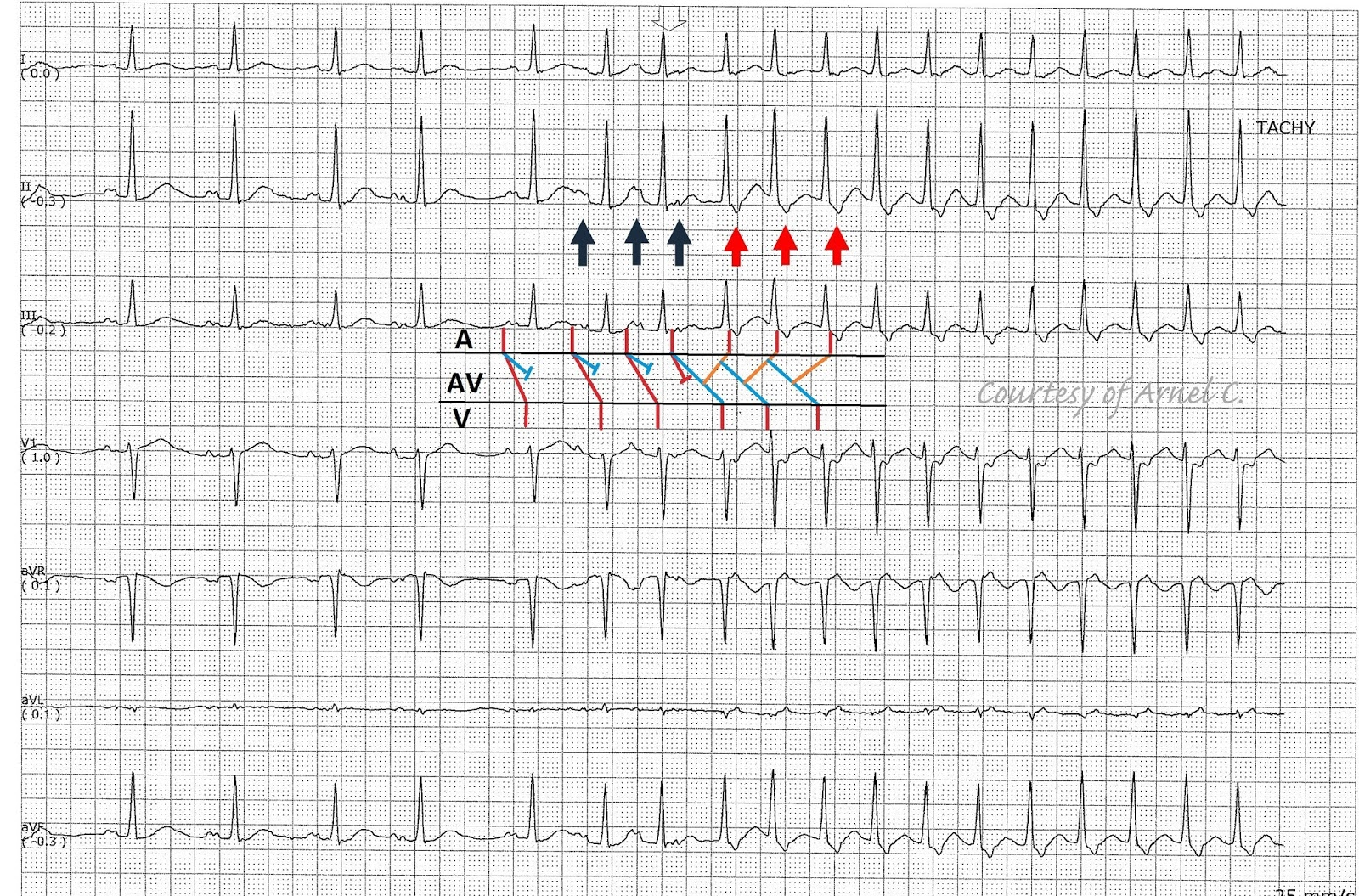 Ecg Rhythms Junctional Tachycardia True Or False