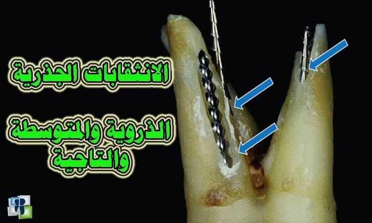 مشاكل علاج عصب الأسنان والتدبير : انثقابات الجذور