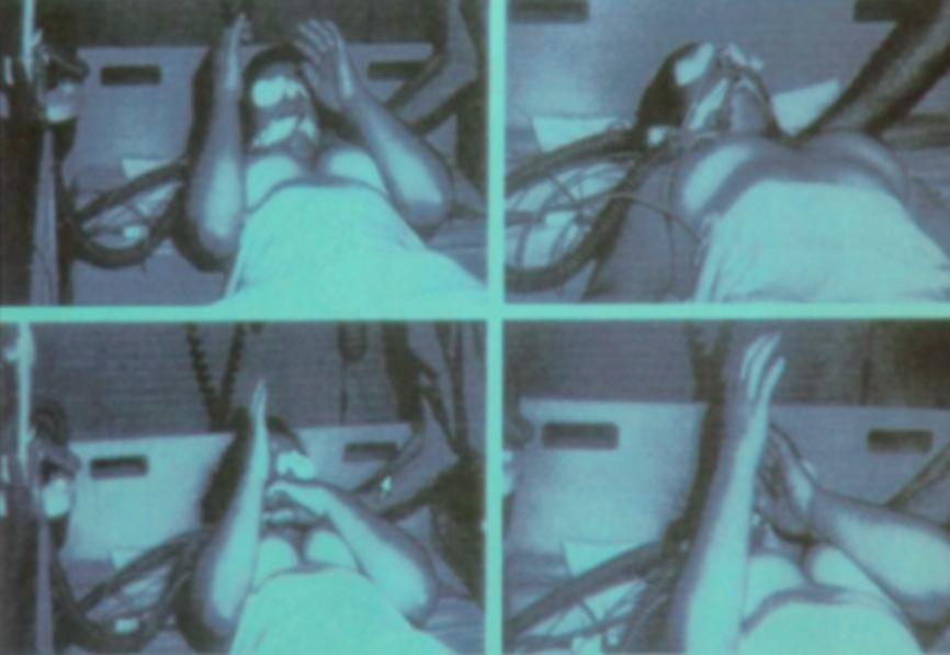 Ciała zmarłych nie są przeszczepiane! - Martwa Pacjentka ze śmiercią mózgu podnosi ręce