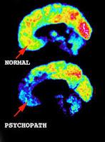 Cerebro y psicopatía