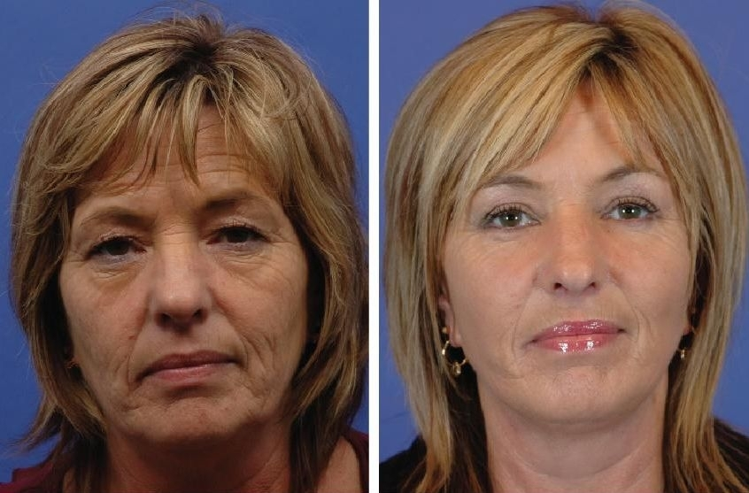 Facial Exercises For A Younger Look And The Ultimate Non