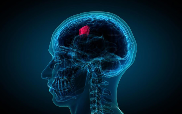 The Different Types Of Brain Tumors And Their Cures