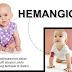 Perawatan Penyakit Hemangioma