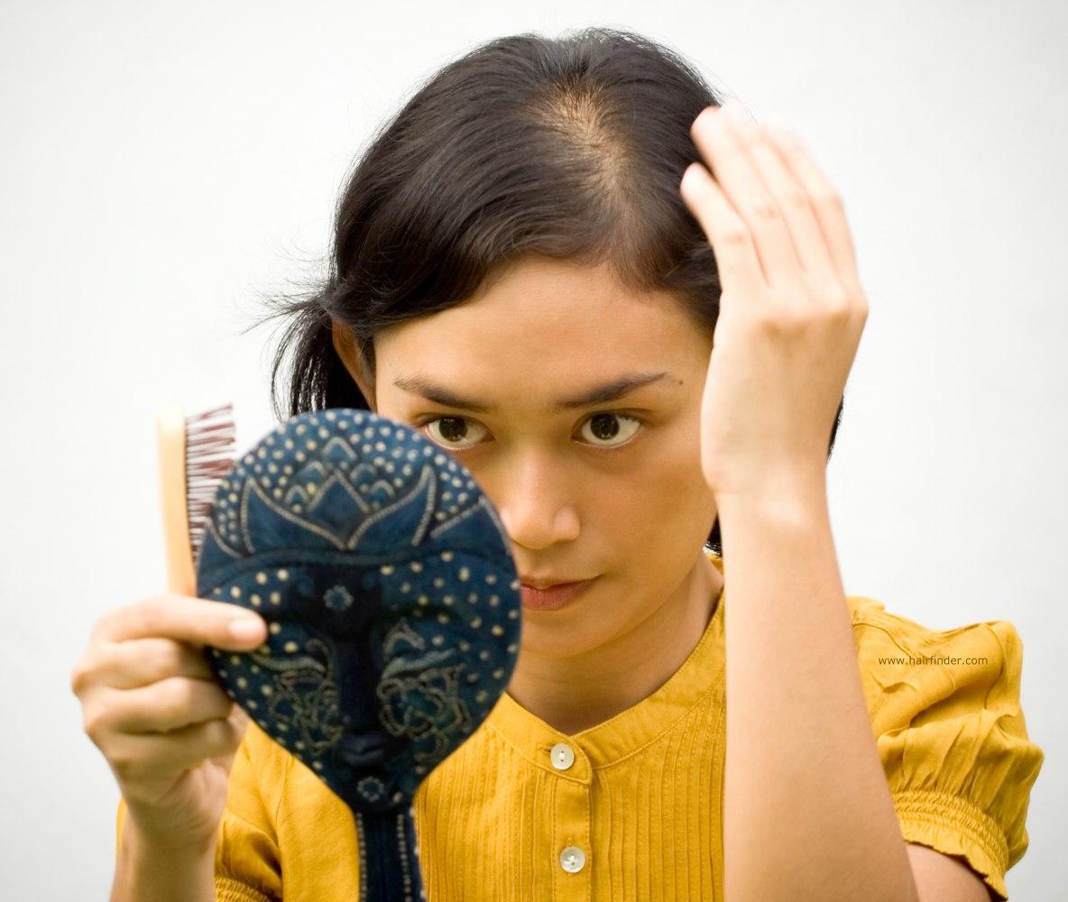 Solusi Sederhana Mengatasi Rambut yang Menipis Pada Wanita