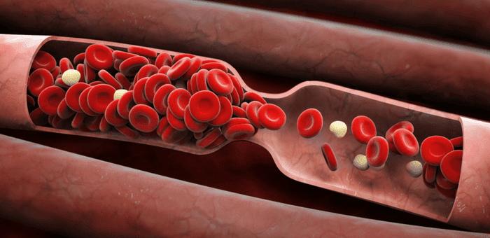 remedios para limpiar las arterias
