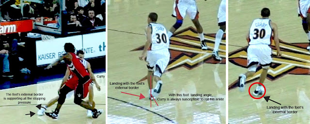 Stephen Curry 腳踝